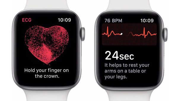 cardiologue Apple Watch